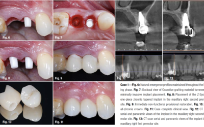 Tooth replacement with one-piece zirconia implants